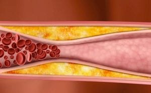 Arterioskleroza